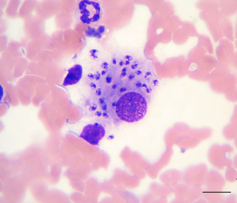 bệnh Kala-azar